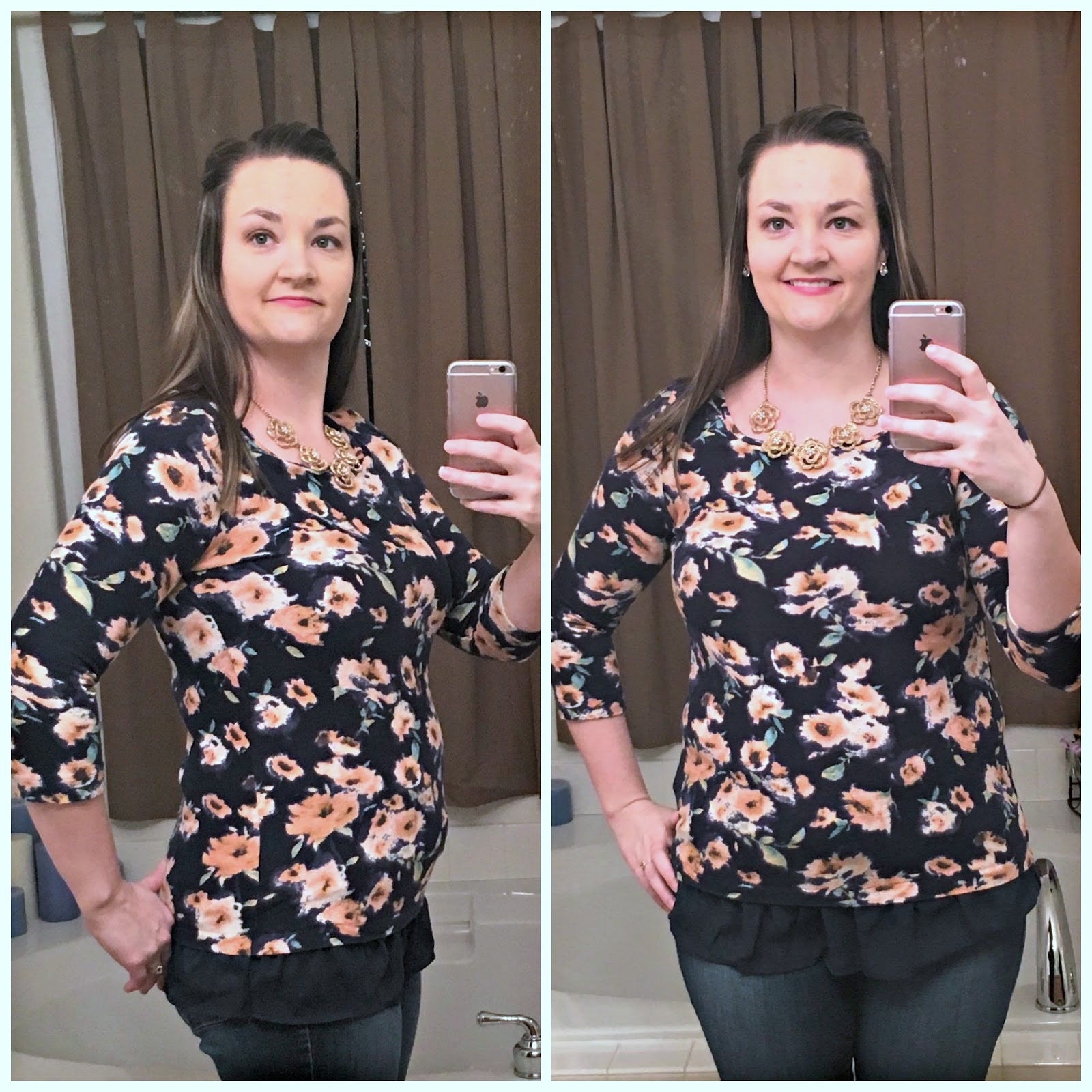 will i lose weight after gallbladder surgery