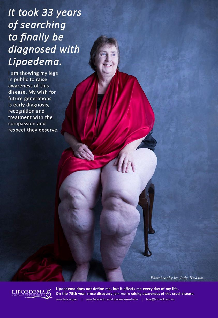 Notes From The Fatosphere: Lipedema: My Story
