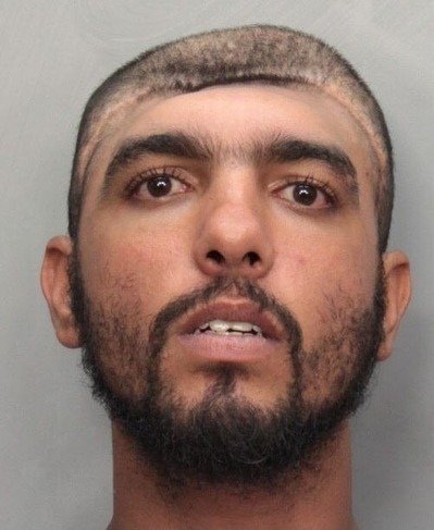 Man with half head mugshot apologise, can