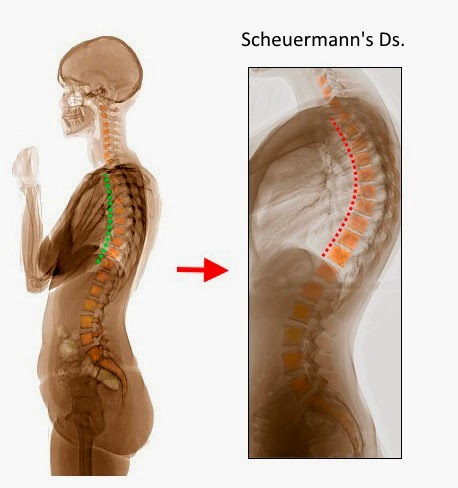 scheuermanns disease adults jpg 853x1280