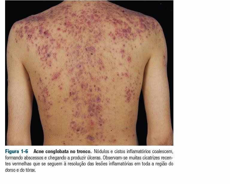 dermatite acneiforme)