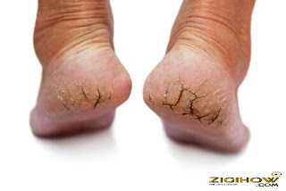 HOW TO GET RID OF CRACKED FOOT 3