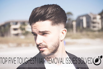 Top five Toughest Hair Removal issues solved