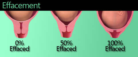 80 percent effaced babycenter effacment how soft or flat the cervix is ccuart Gallery