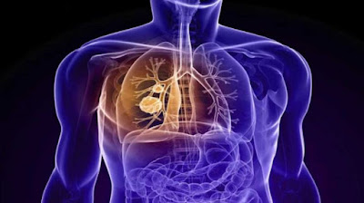 Mesothelioma Information Knowing About The Disease Is Our Own Right