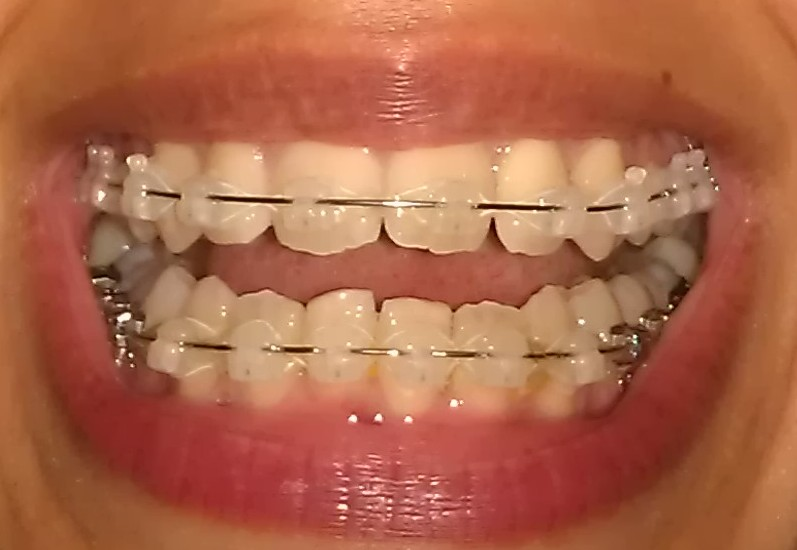 My Damon Clear Braces Week 15 Third Wire Change And