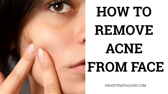 How to remove acne scars from face, how to get rid of acne, pimples and scars on face