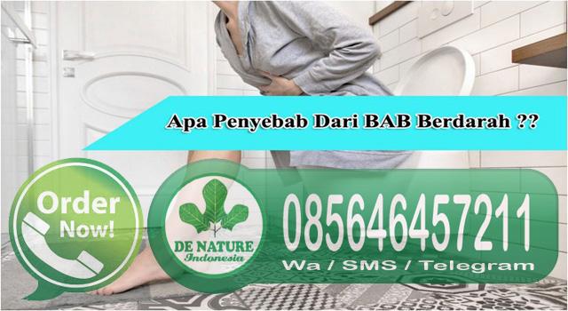 Merk Obat Wasir (Hemoroid) Herbal Ampuh