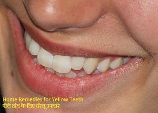 Teeth-दांत पीले है करें घरेलू Treatment