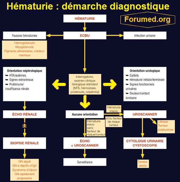 Hématurie: démarche diagnostique