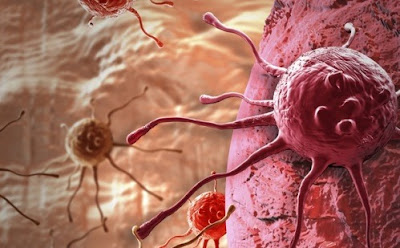 New Findings Bring About Better Understanding Of Many Cancers' Metabolic Needs