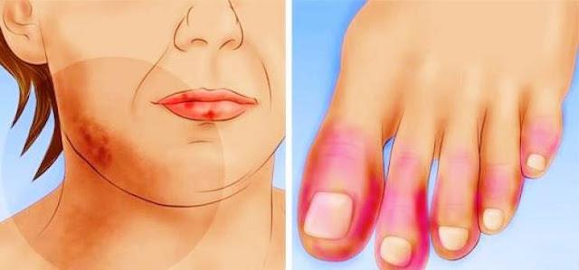 إشارات اذا ظهرت لكم فانها تدل على إصابتكم بمرض جلدي خطير ! عند ظهور هذه الأعراض، سارعوا لاستشارة الطبيب فورا
