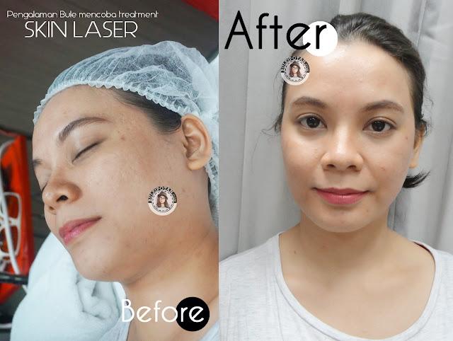 Setelah+perawatan+di+JPP+Skin+Laser+Clinic