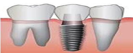 dental%2Bimplement