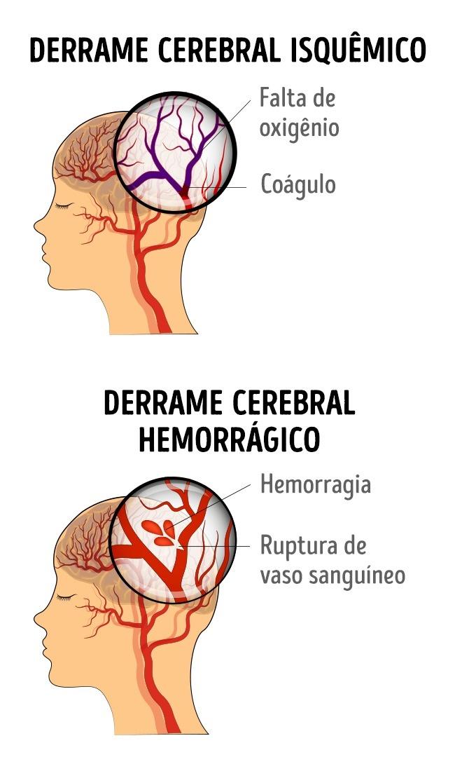 Nos sangue cerebrais sinais de sintomas coágulo e