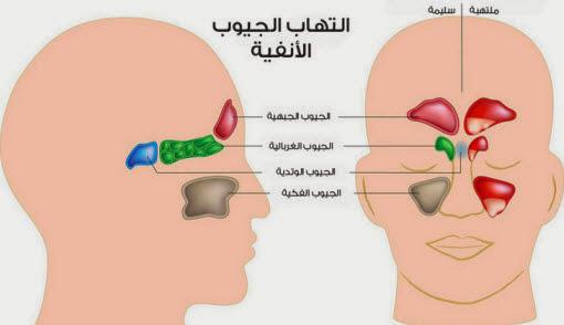التهاب الجيوب الأنفية: الأعراض والأسباب والعلاج
