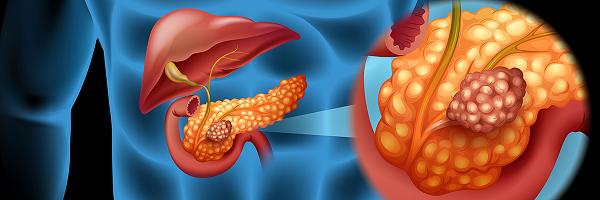 Pankreas Kanseri Tedavisi