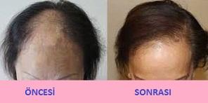 bayanlarda saç ekimi öncesi ve sonrası