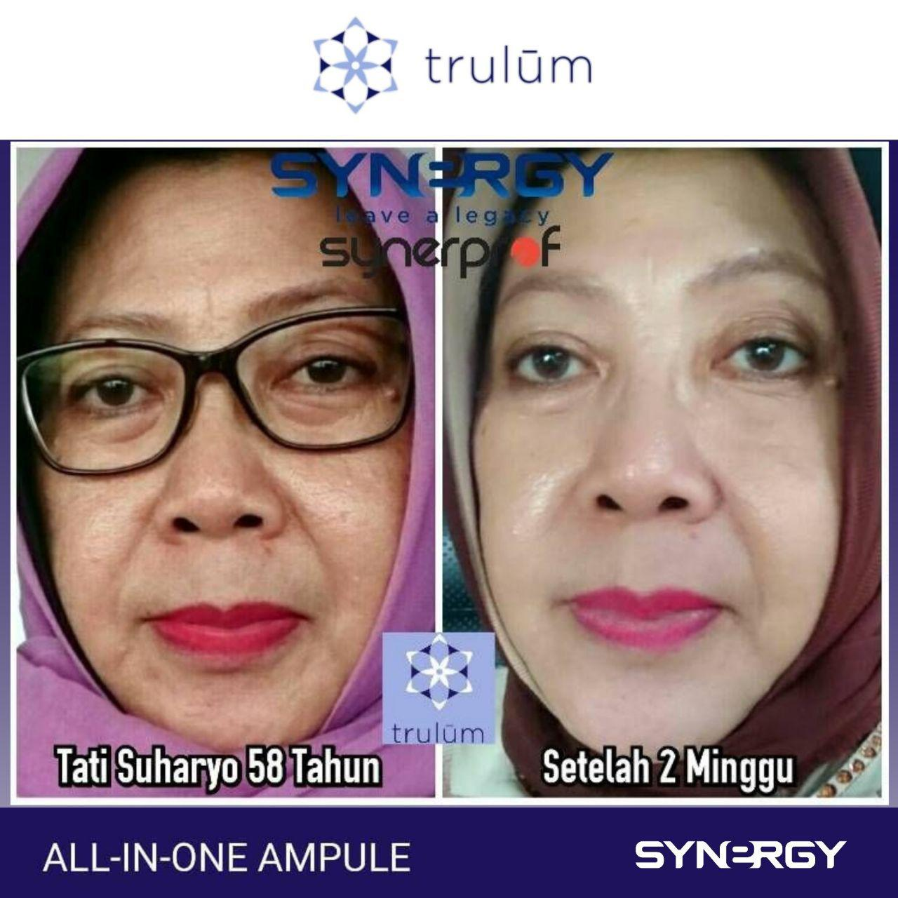 Klinik Kecantikan Trulum All In One Ampoule Di Rancah, Ciamis WA: 08112338376