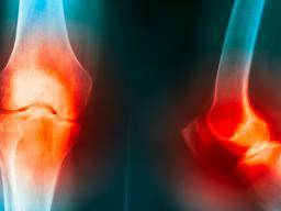 Health :Is the Fox0  the solution for the prevention and treatment  of osteoarthritis disease ?