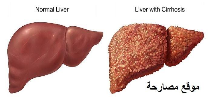 ما هو مرض تشمع الكبد ؟