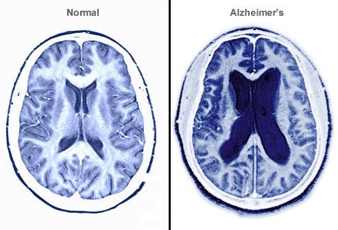 Son yapılan araştırmalar sonucunda alzheimer hastalığının olası sebeplerinden biri daha keşfedildi.