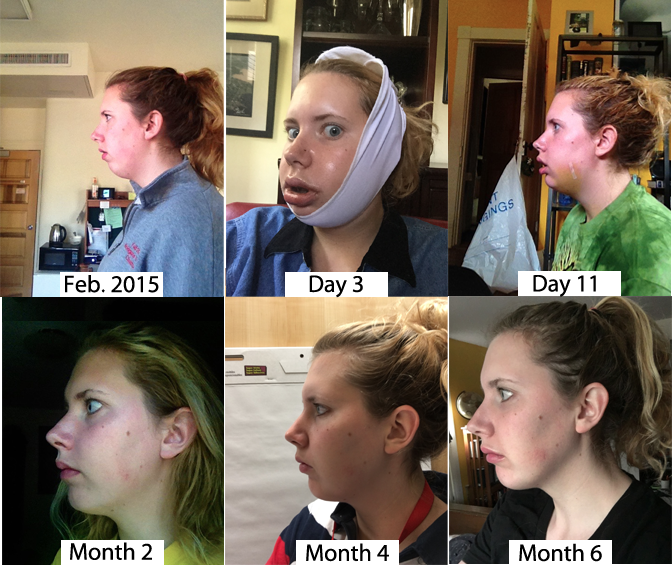 Double Jaw Surgery