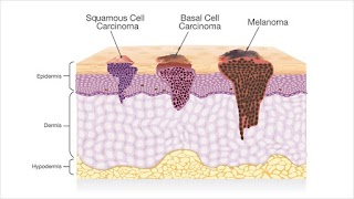 The Second Most Common Skin Cancer