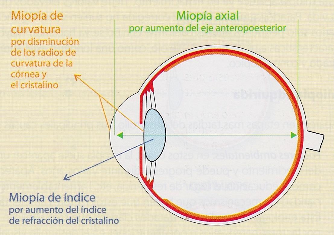 miopie axială)