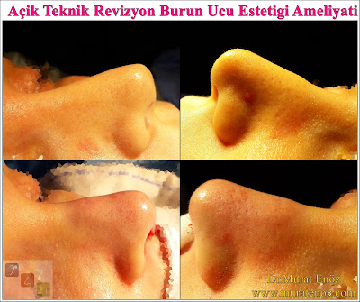 Open technique nose tip plasty - Tip plasty in Istanbul - Tip plasty in Turkey - Revision tipplasty in Istanbul  -  Revision tipplasty in Turkey - Unilateral transdomal suture - Tip rhinoplasty in Istanbul - Open technique nose tip surgery