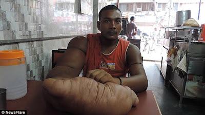 Pria Asal India Ini Memiliki Lengan Sebesar 20kilogram