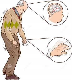 Obat Parkinson Di Apotik