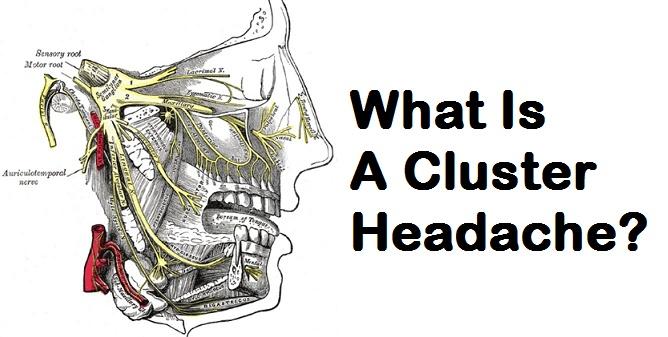 What Is A Cluster Headache?