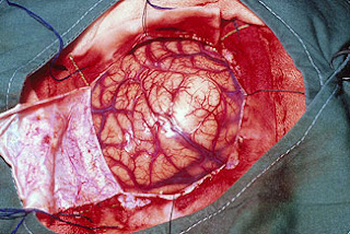 Smart Medical Information Now We Can Dissolve Blood Clots