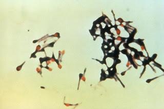 Bacteria del tétanos con esporas por liberarse.