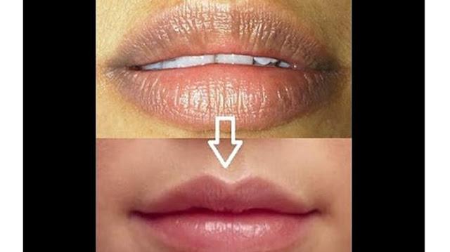 Bibir Anda Hitam..?? Ini Cara Membuat Bibirmu Merah Merekah Dengan Mudah !!! Begini Caranya...
