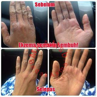 sebelum dan selepas guna bedak asma'