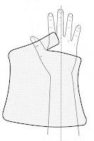 大拇指固定型副木(Thumb spica splint)