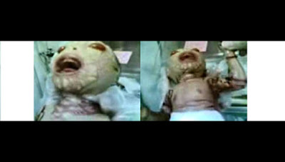 A baby suffering a disease called Harlequin type ichthyosis