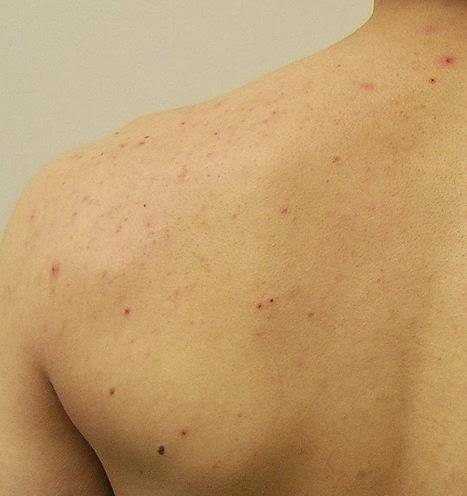 Best Acne Treatment Back Acne Scars Problem
