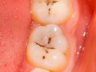 Trám răng có hết sâu không ?