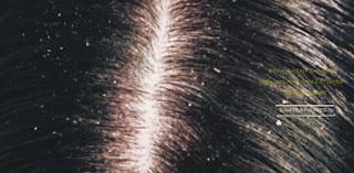 6 Rahasia Menghilangkan Ketombe Di Rambut Secara Cepat Dan Alami