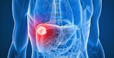 Ciri ciri Penyakit Liver