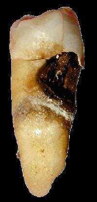 Sakit gigi adalah rasa nyeri pada gigi. Sakit gigi disebabkan oleh berbagai  masalah pada gigi dan rahang 3d7a4516d7