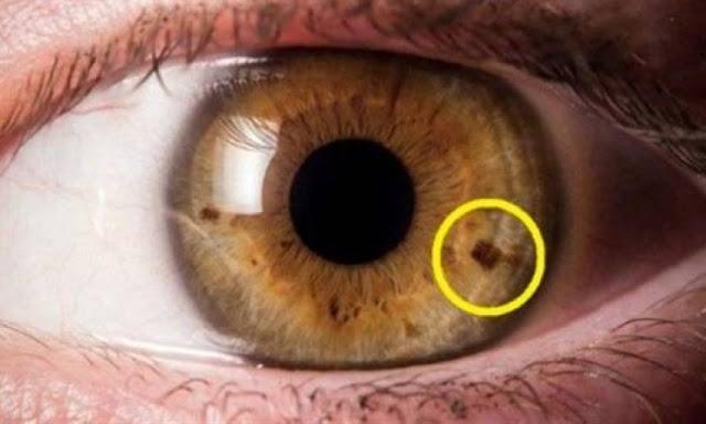 صدقوني الكل سوف يشاهد عينه اليوم في المرأة اليوم.... هل تلاحظ نقاط ملونة في حدقة عينك؟.. هذا ما يعنيه ظهورها!