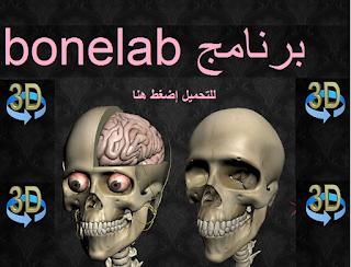 https://www.4shared.com/rar/QnvSnd6Pba/bonelab_2336uploadby.html