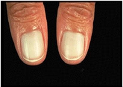 Como se ve el hongo de la uña en la mano sobre el pulgar