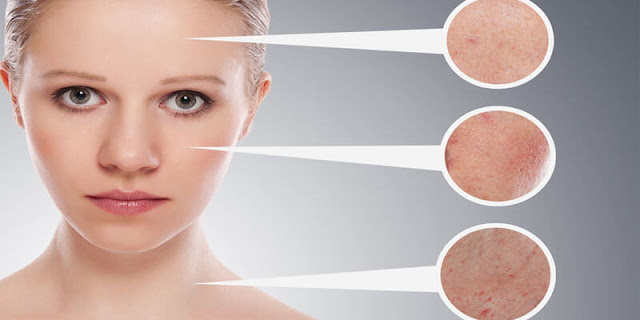 Signs of Skin You Should Never Ignore - Skin Care - Beauty tips