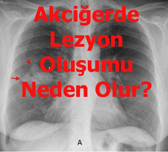 Akciğerde Lezyon Oluşumu Neden Olur?