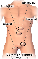 How to Cure of HERNIA within some Days, that You should know